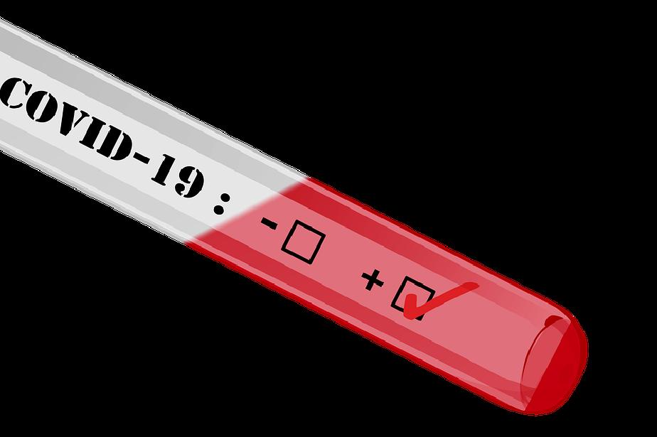 тестове COVID-19