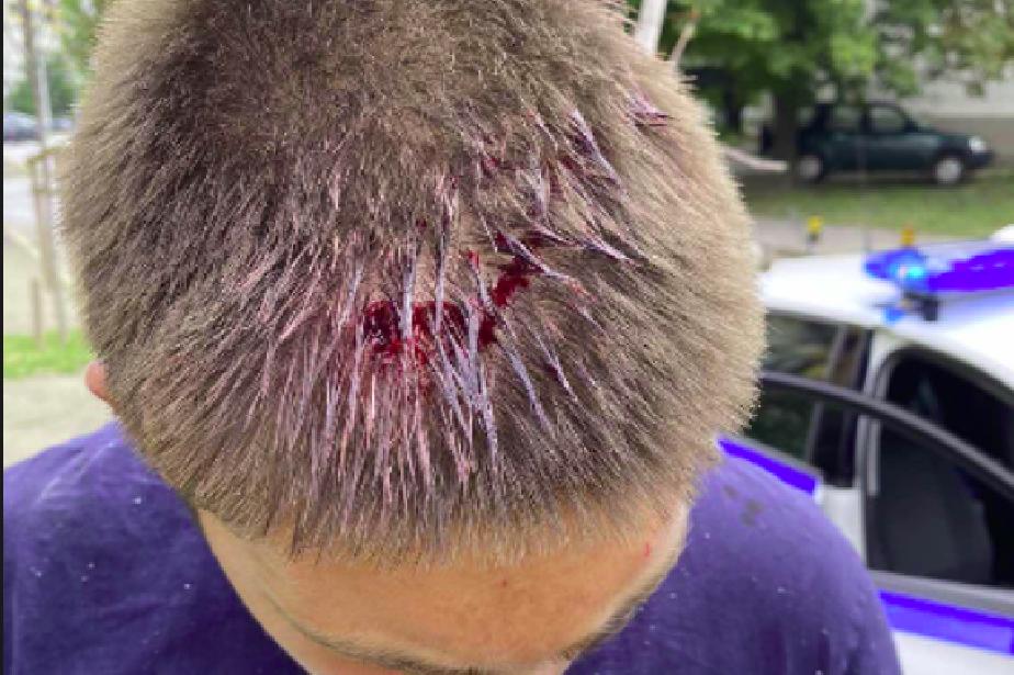 """7 момчета нападнаха и сцепиха главата на 17-годишен от """"Локо"""" София"""