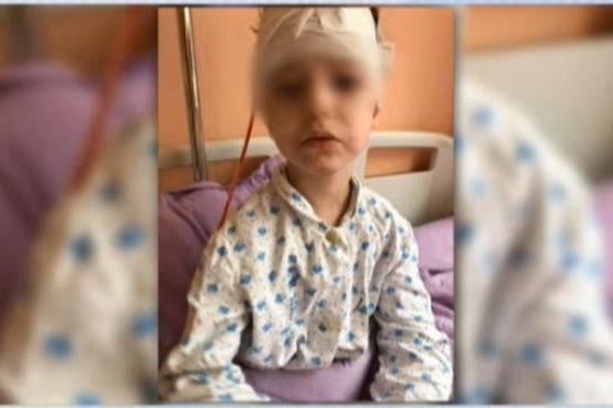 Питбул атакува и нахапа 4-годишно момиченце в София