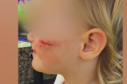 Двегодишно дете е с разцепена буза след рязко спиране на такси на столична