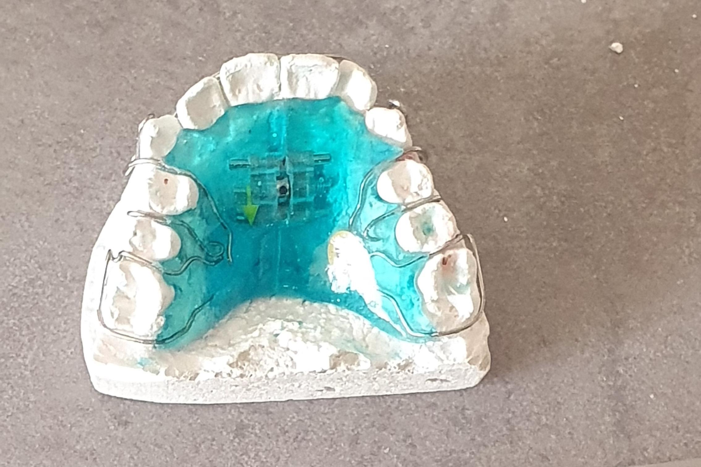 Ортодотско лечение - Борика
